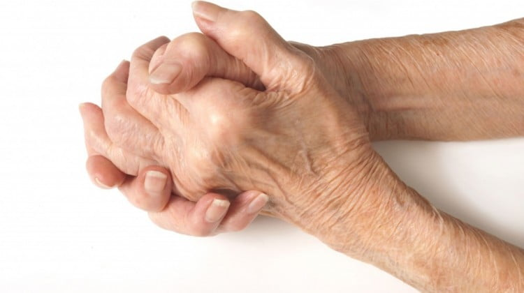 old persons arthritic hands