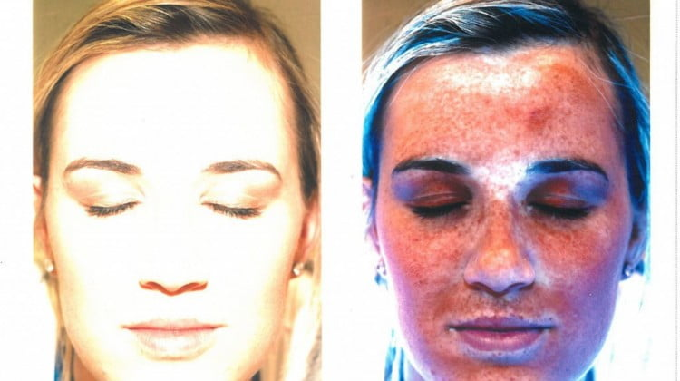 Discount Drug Stores UV camera shows ordinary photo of face next to sun damage visible in UV camera