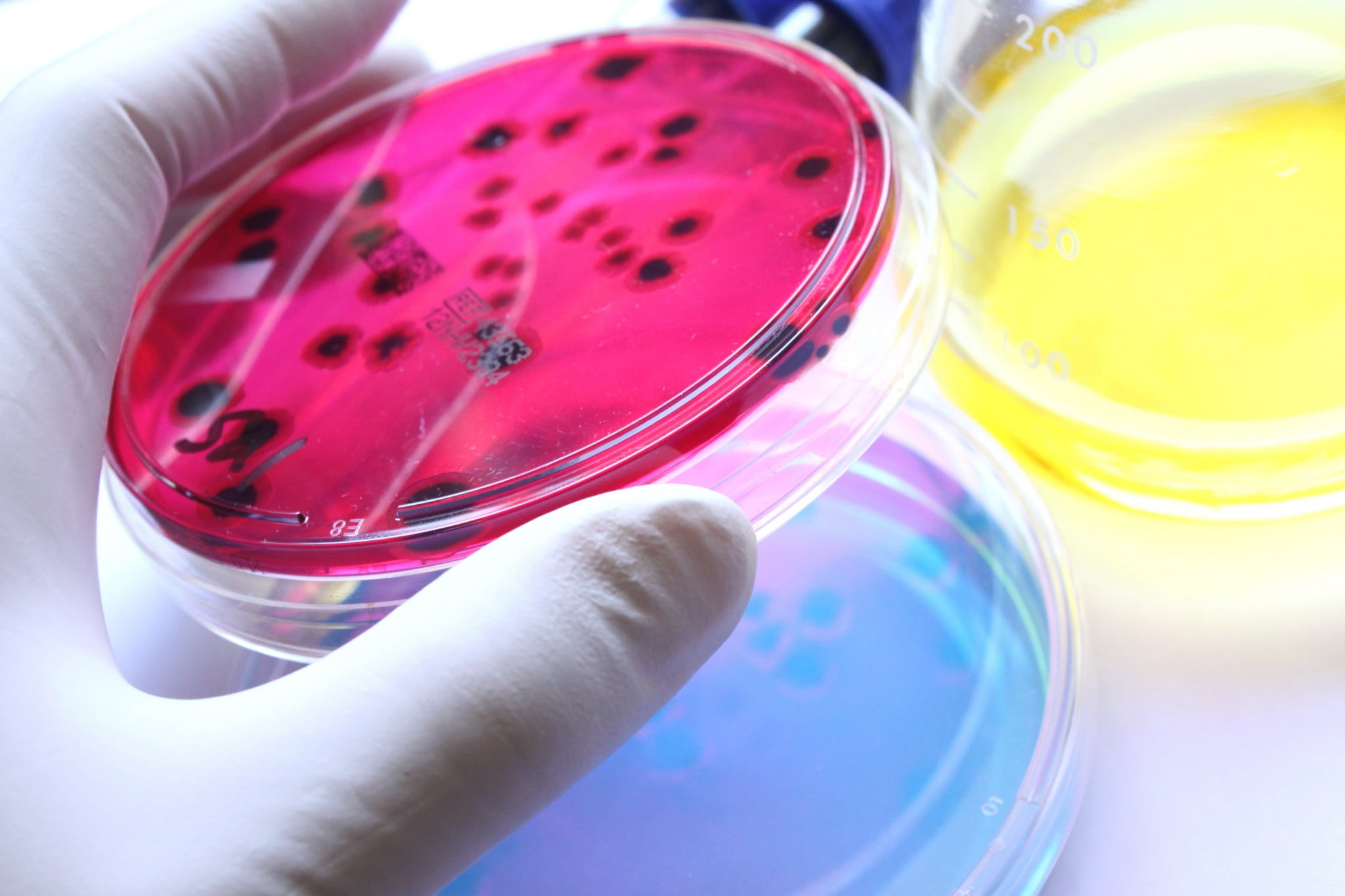 colourful bacteria in lab dishes: food safety