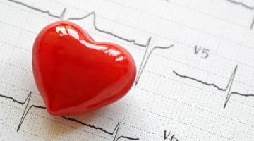 cholesterol: heart on ecg graph