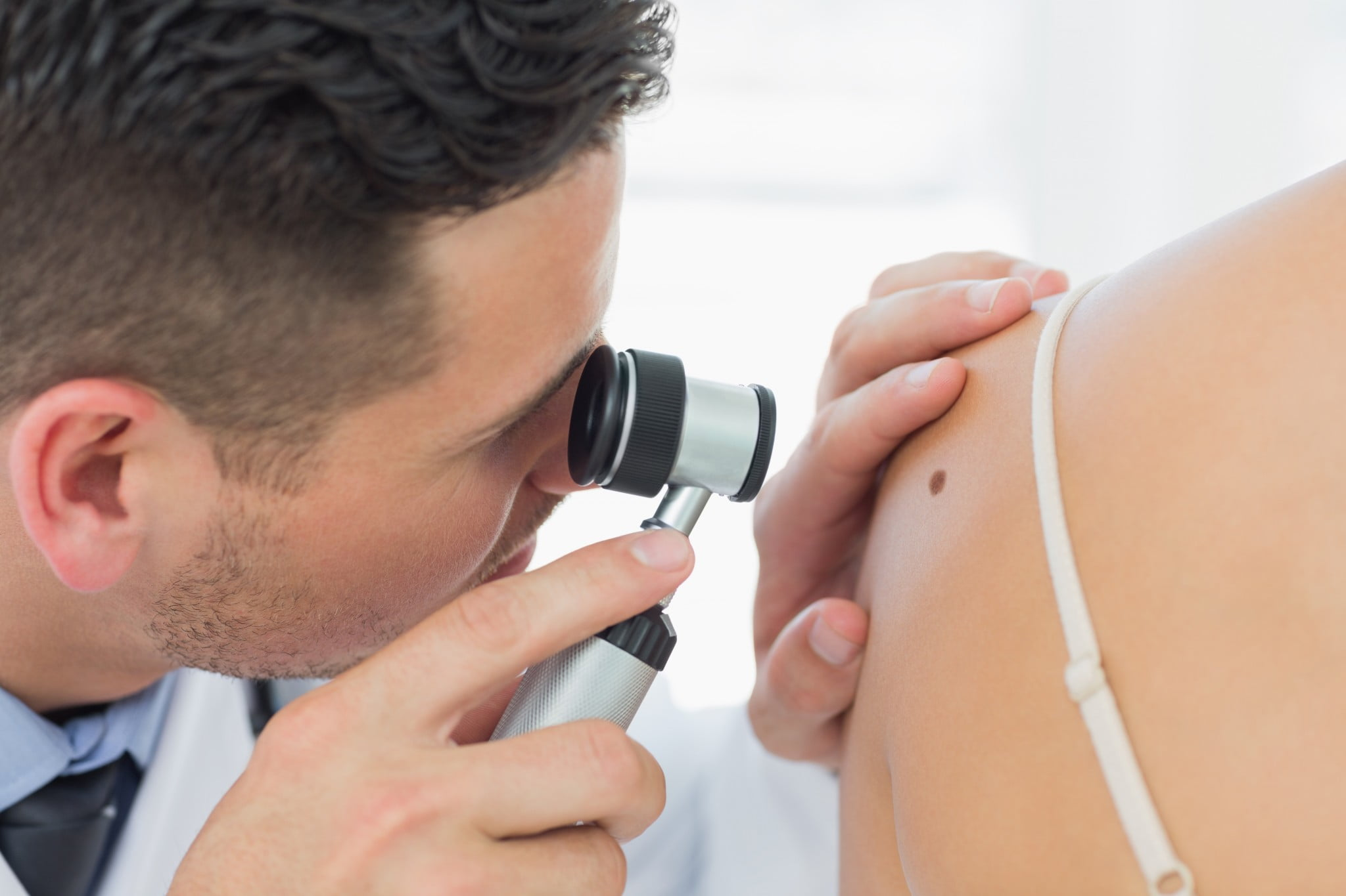 melanoma: dermatologist examines mole on woman's shoulder