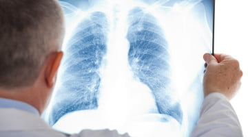 lung radiography, pneumonia awareness