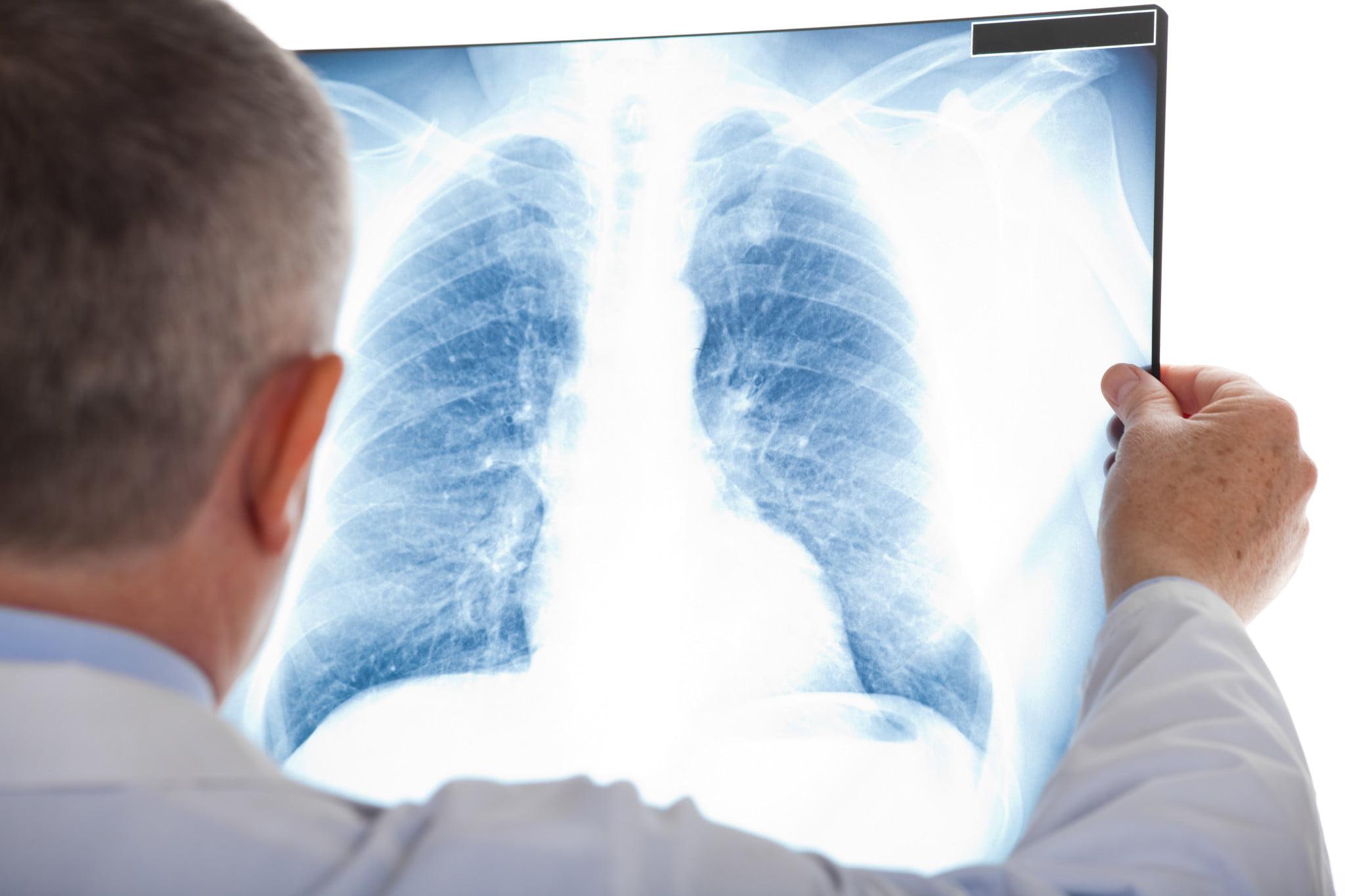 lung radiography, pneumonia awareness
