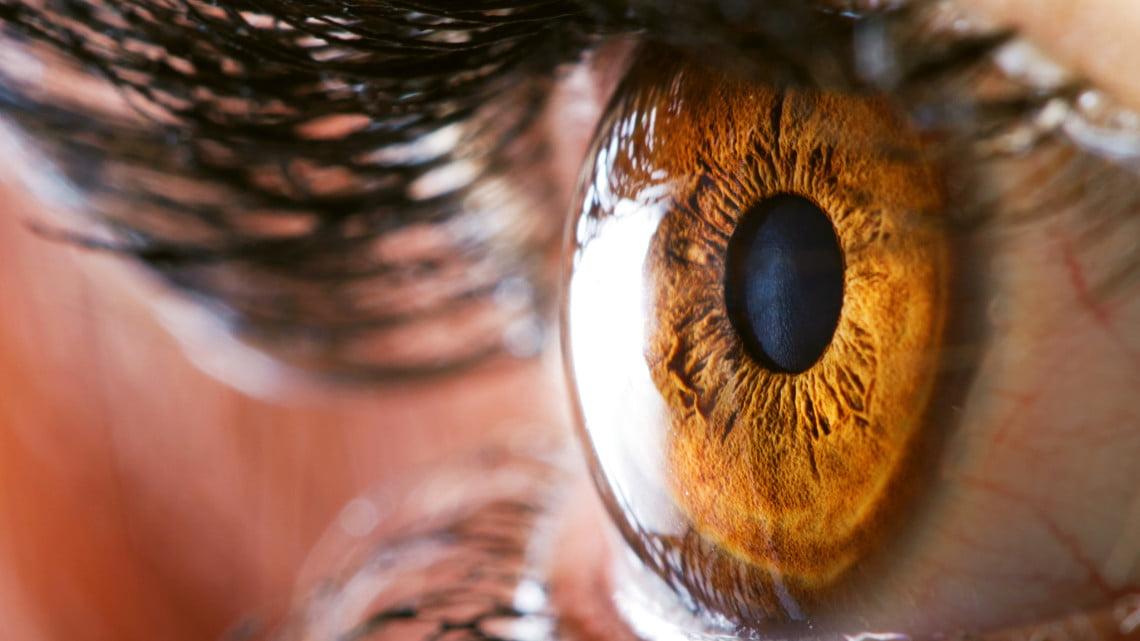 macular degeneration: closeup of woman's hazel eye