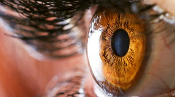 macular degeneration: closeup of woman's hazel eye