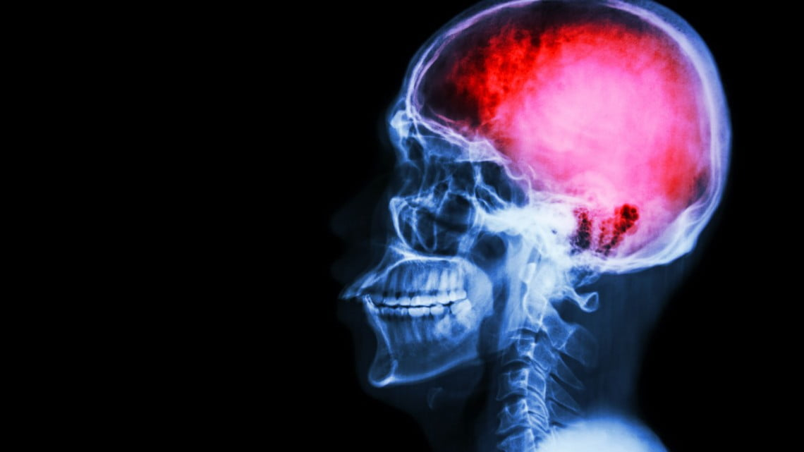 stroke drug: x-ray of skull with brain picked out in pink
