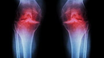 knee and back pain: arthritic knee x-ray