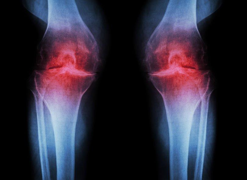 knee and back pain: arthritic knee x-ray