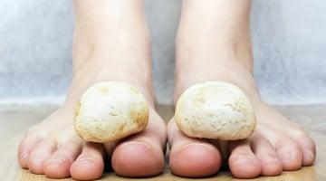 feet with mushrooms: tinea