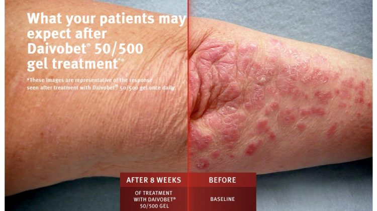 Before/after psoriasis slider