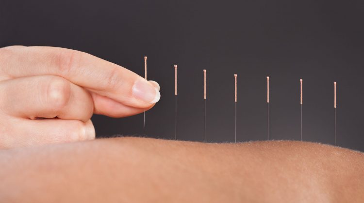 25045894 - close-up of a person getting an acupuncture