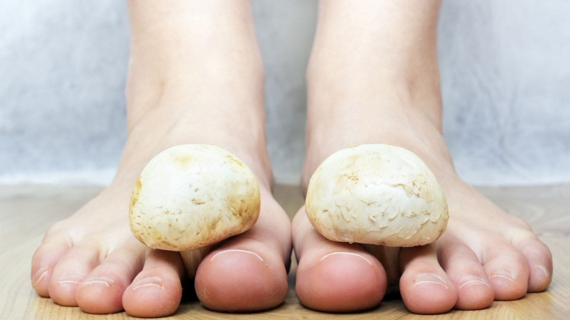 Explainer: why we get fungal nail infections and how we can treat ...