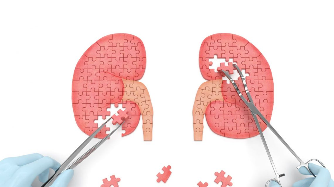 Image of jigsaw puzzle kidneys