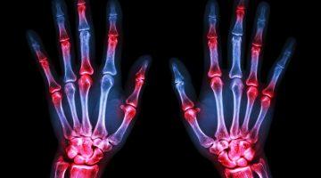 arthritis gout inflammation sore hands joints