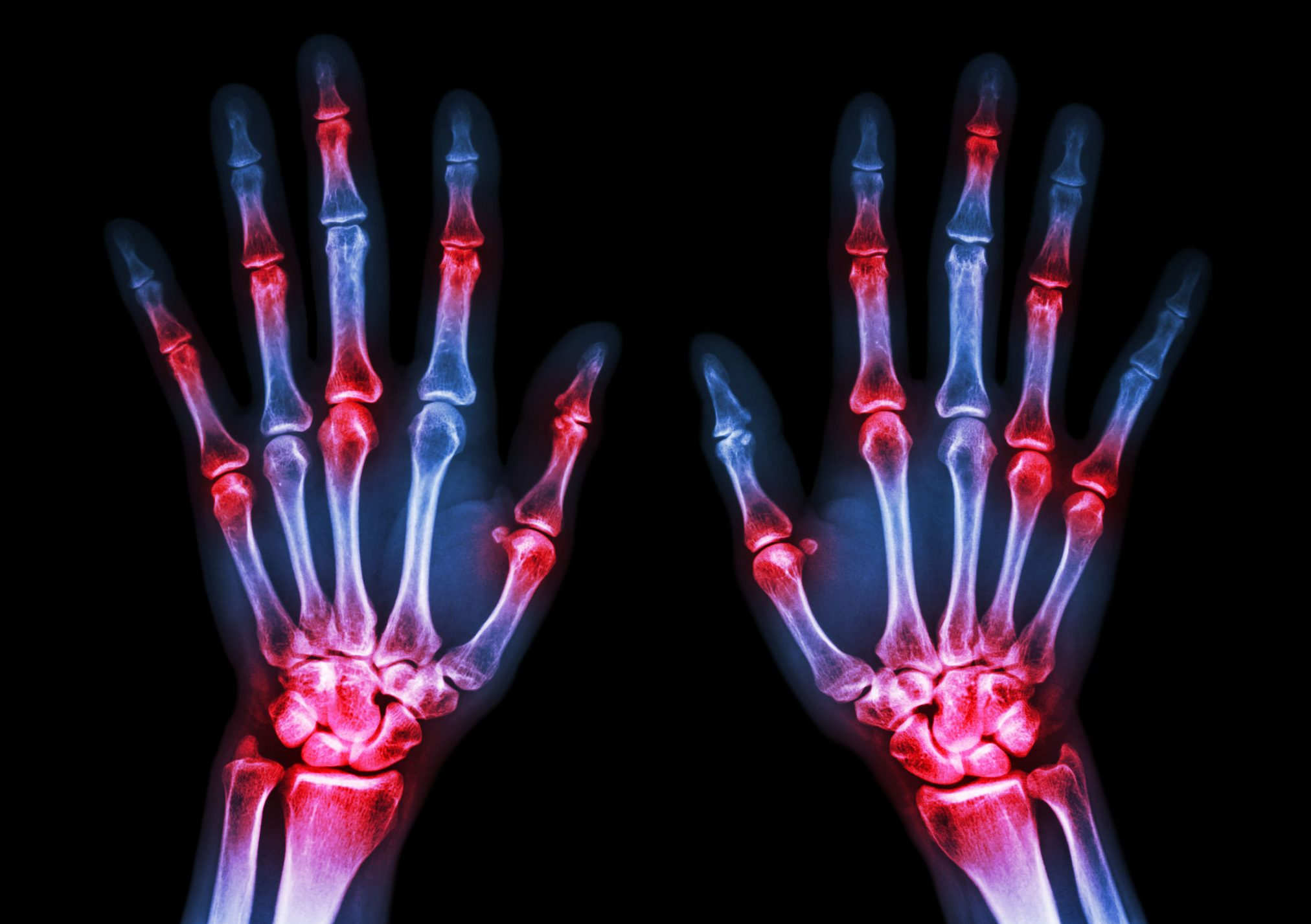 arthritis gout inflammation sore hands joints