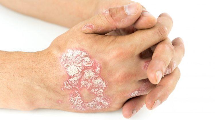 plaque psoriasis on hands