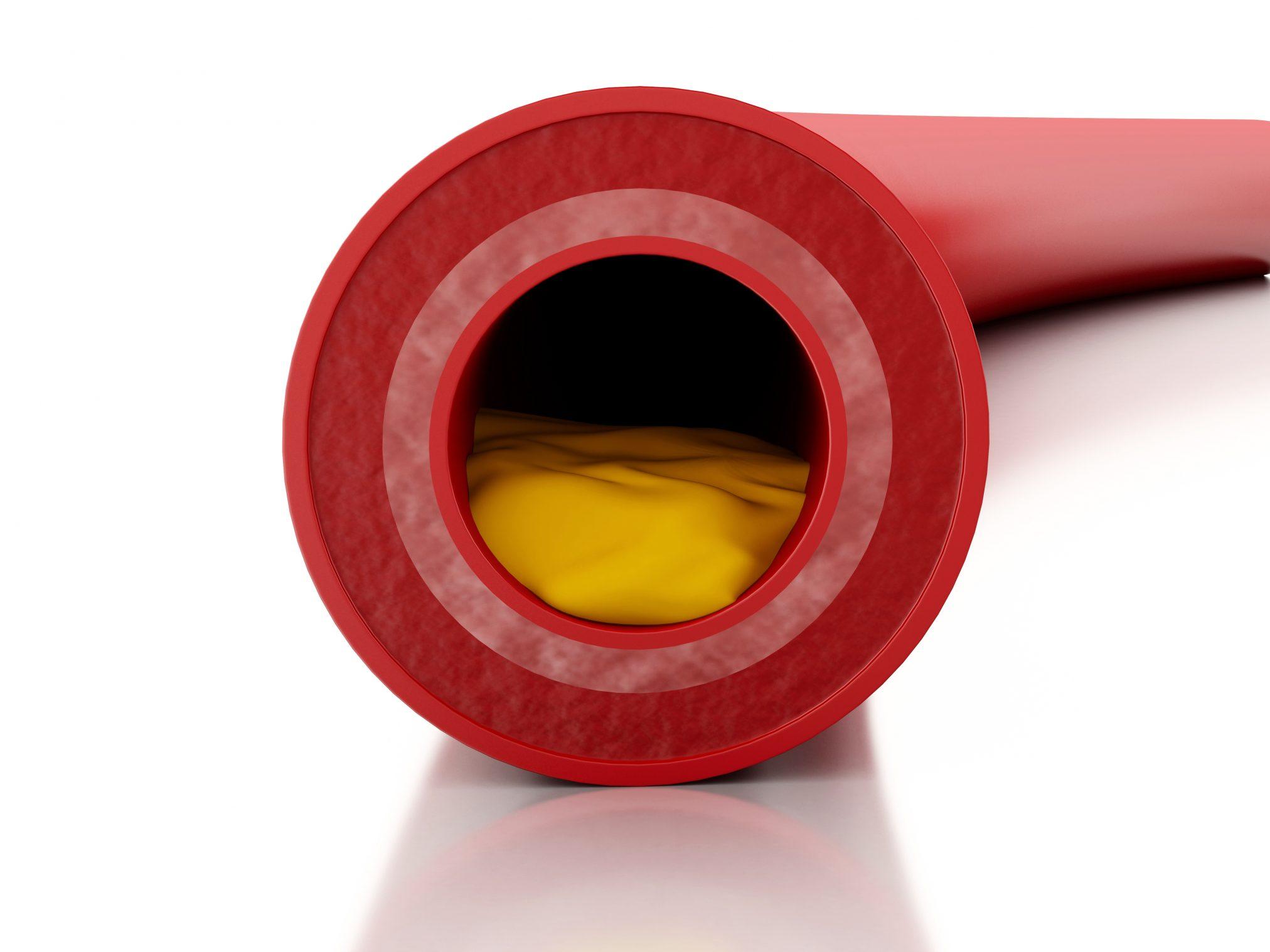 cholesterol in an artery