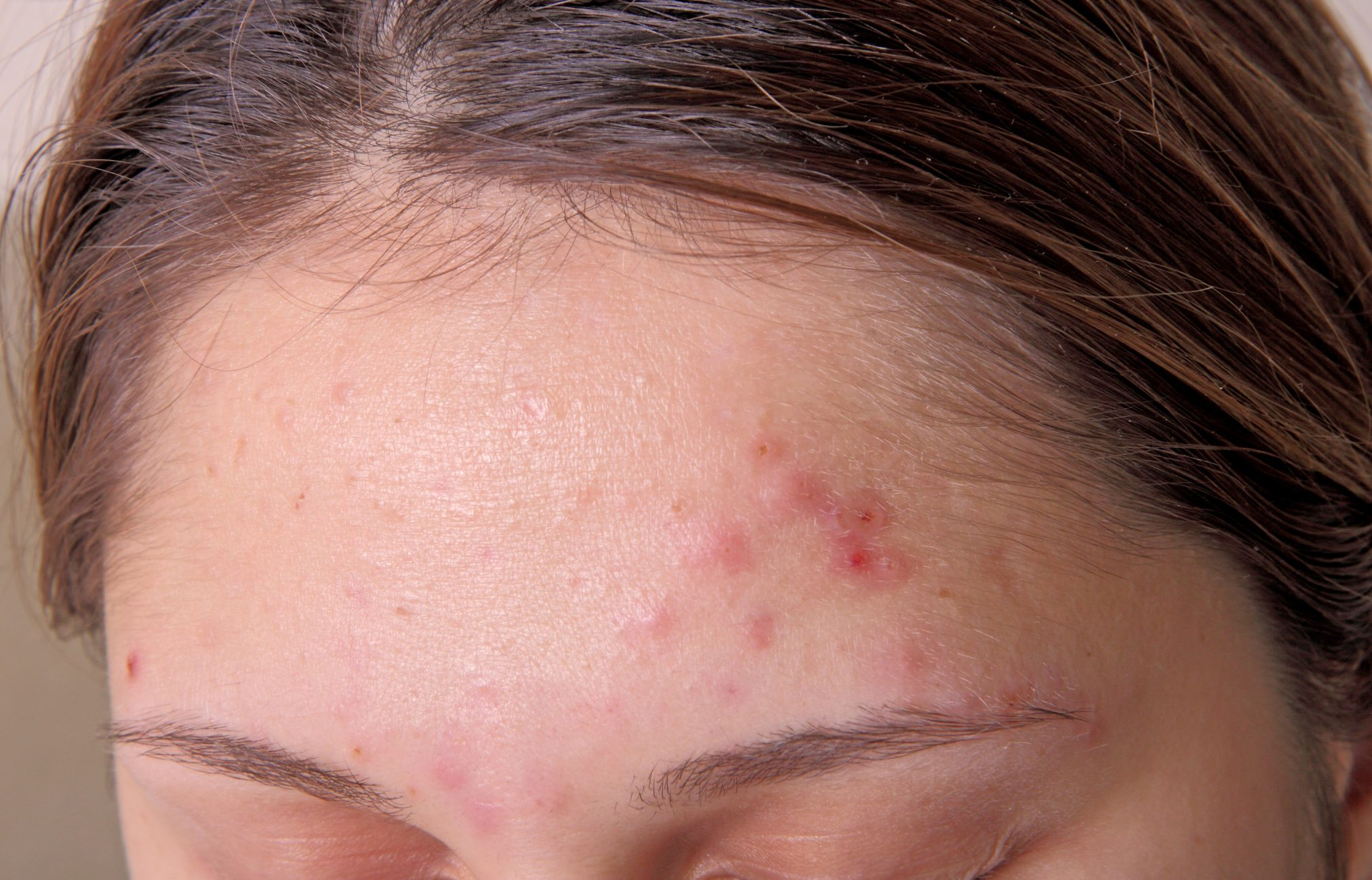 forehead with acne pimples